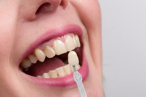 Why Get Cosmetic Dentistry Veneers?